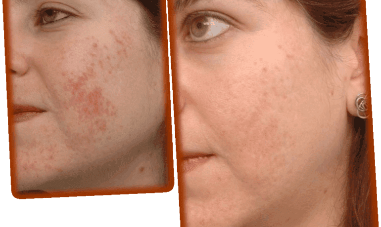 Effective Acne Scar Removal