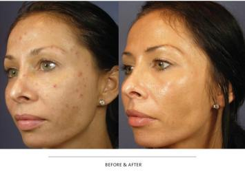 Tighten and firm any loose, wrinkled or dimpled skin on your face and body