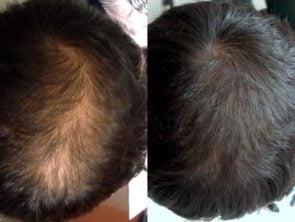 platlet rich plasma hair