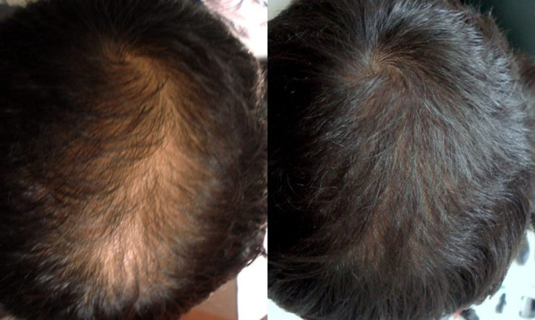New Treatment For Thinning Hair: Platelet Rich Plasma (PRP)