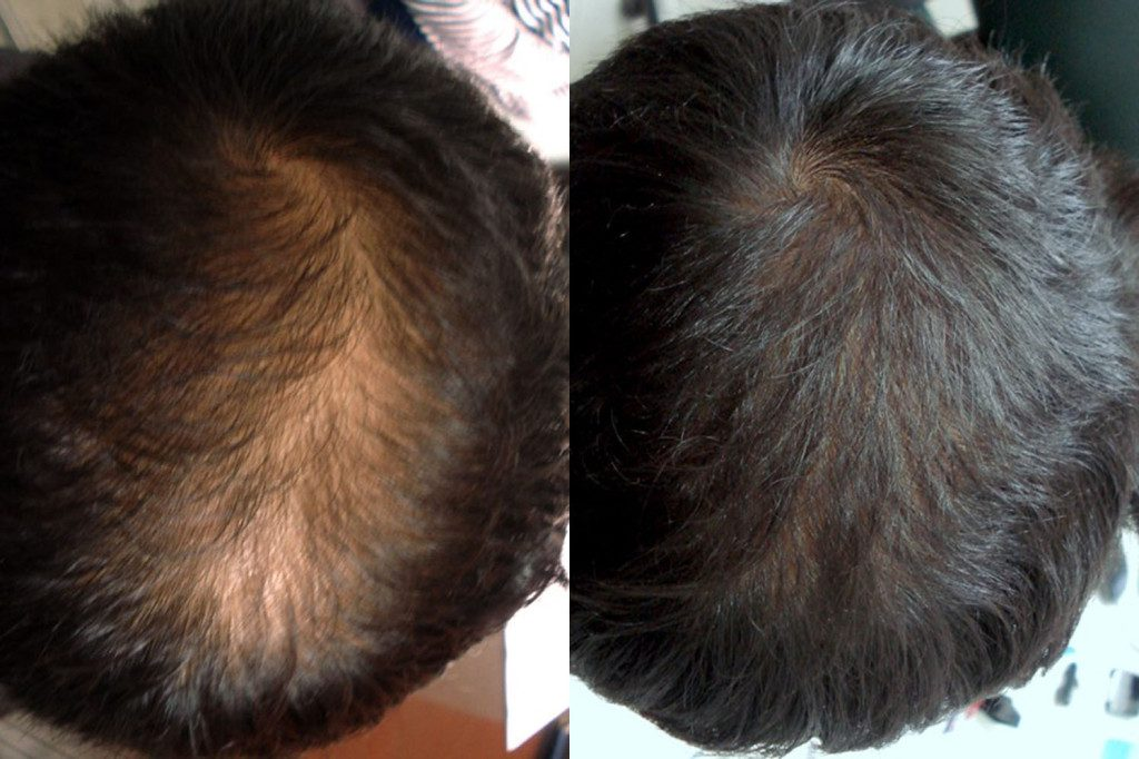 New Treatment For Thinning Hair Platelet Rich Plasma Prp