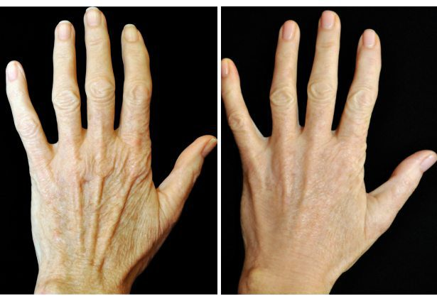 How to get younger looking hands with Radiesse fillers