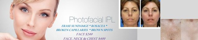 Photo facial Fairfax VA