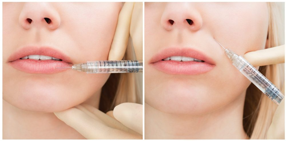 Difference Between Botox and Dermal Fillers