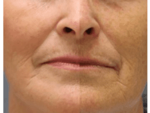 RF Microneedling Before Afters 3