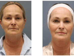 RF Microneedling Before Afters 4