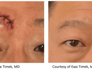 RF Microneedling Before Afters 7